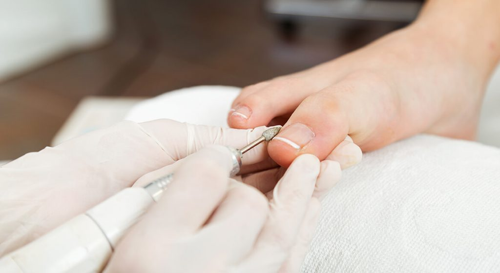 Pedicures by Elegance mobile beauty therapy nuneatonmobile-beauty-therapist-nuneaton